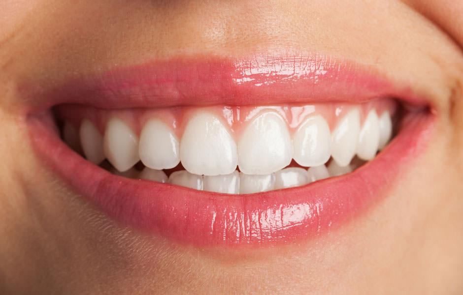 diseño de sonrisa tratamientos dentales - clínica dental doria-medina