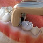 odontología conservadora extracciones clínica dental doria-medina