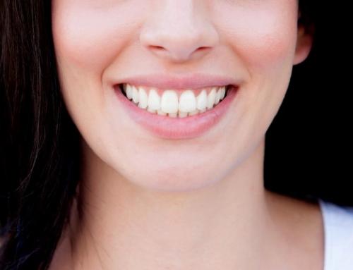 Implantes dentales, todo lo que debes saber